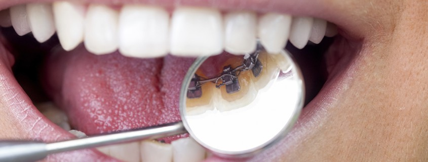 Lingual Braces at Apollonia-dcc