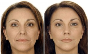 botox-b-and-a