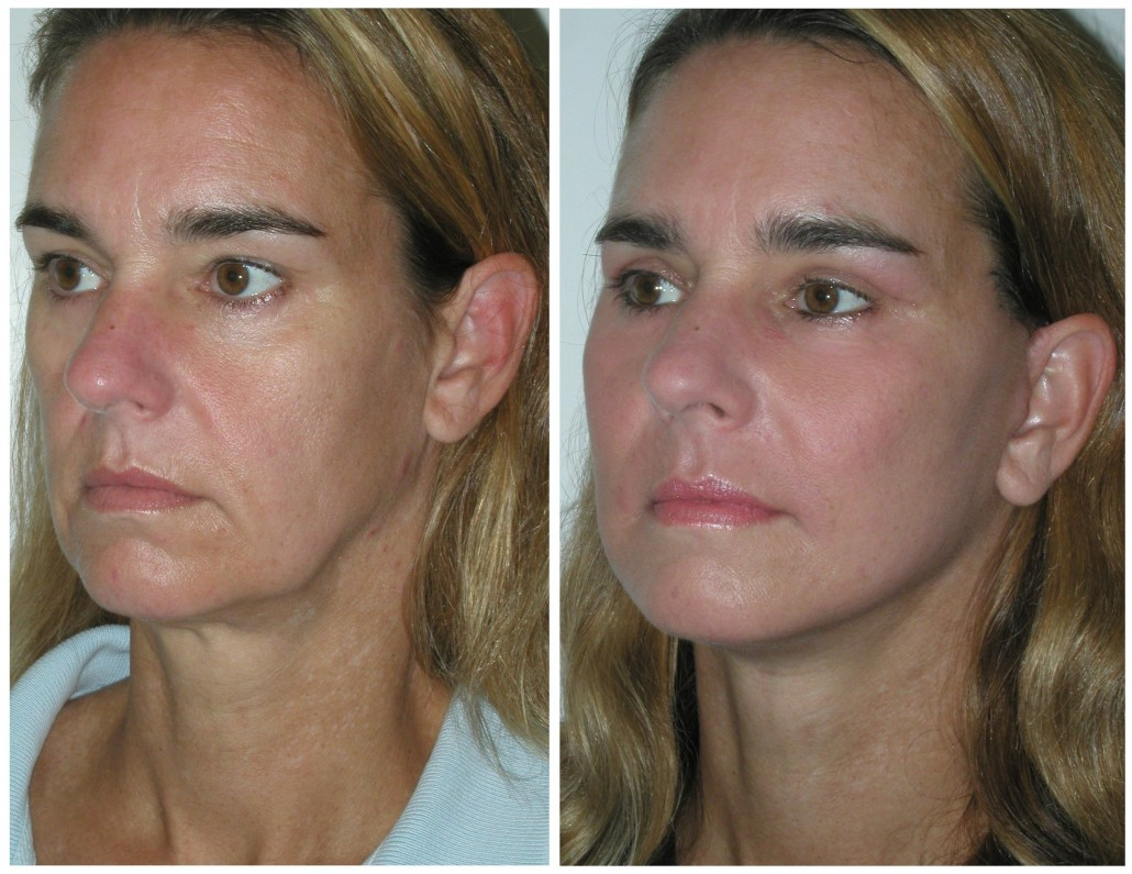 jowls_thread_lift_Anita_before_after