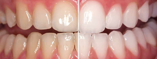 Teeth-Whitening-Before-and-After-Chapel-Hill