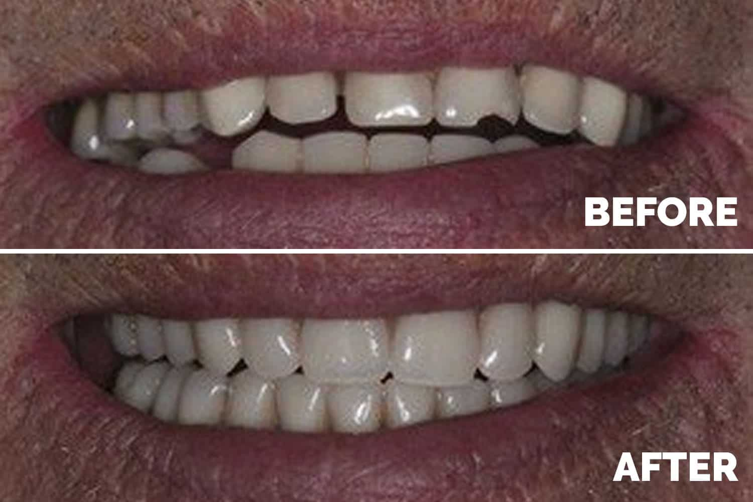 Cosmetic Dentures Liverpool