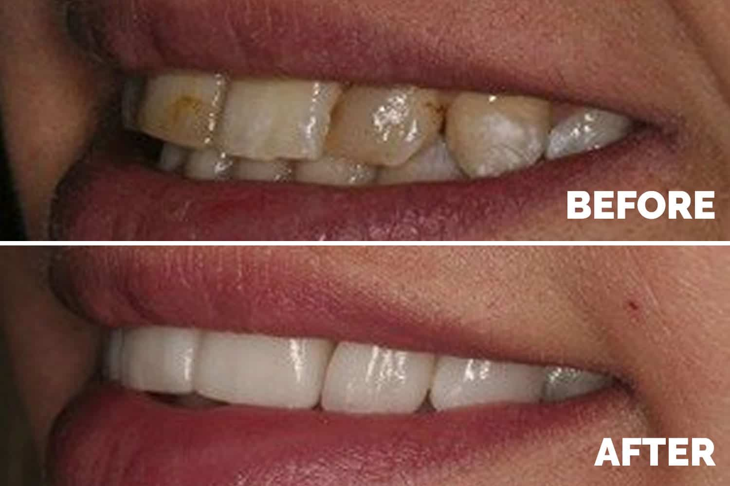 Dental Veneers Liverpool