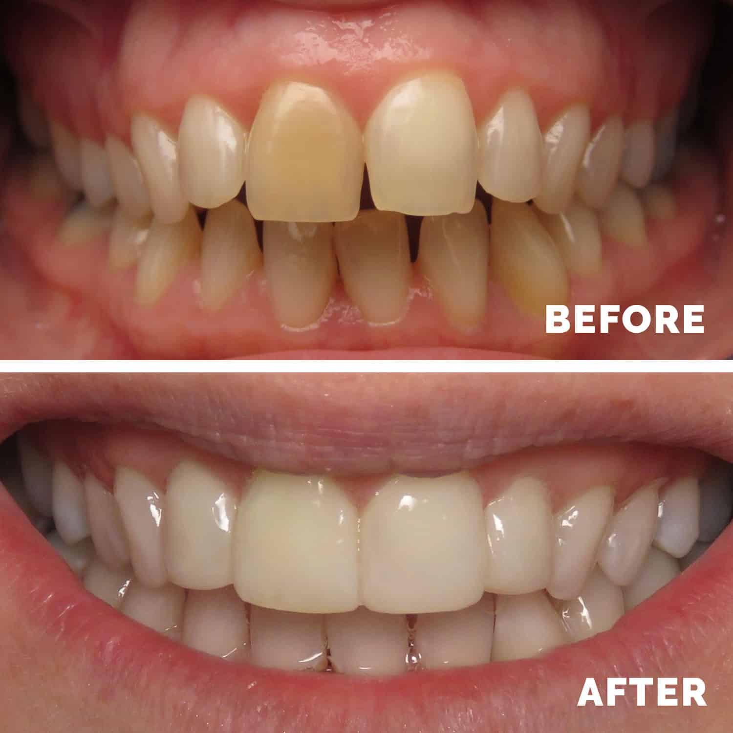 Tooth Whitening Liverpool