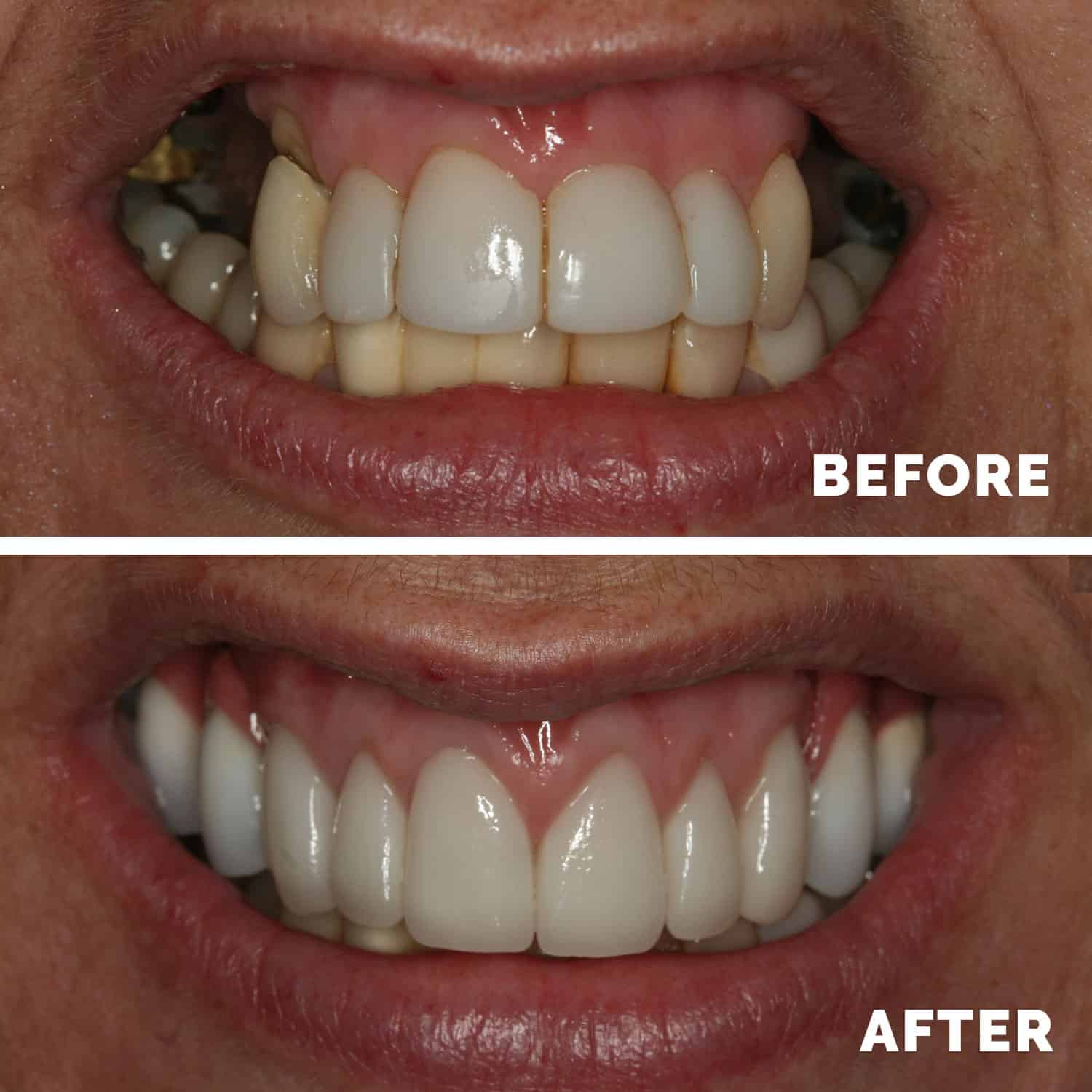 Dental Implants Liverpool
